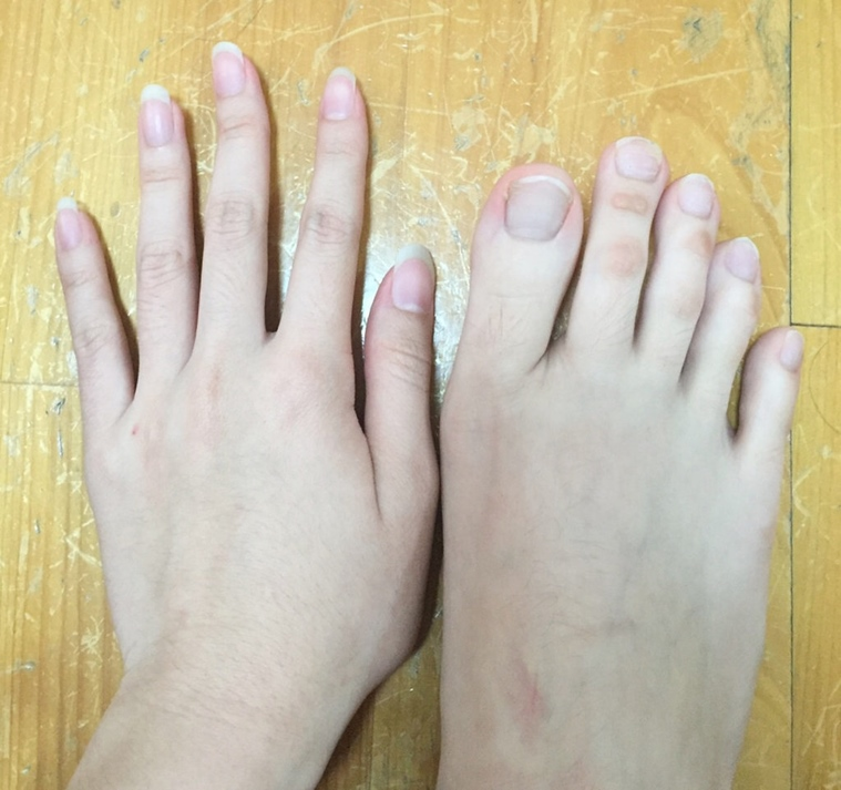 THE INTERNET GOES CRAZY SEEING THIS WOMANS TOES
