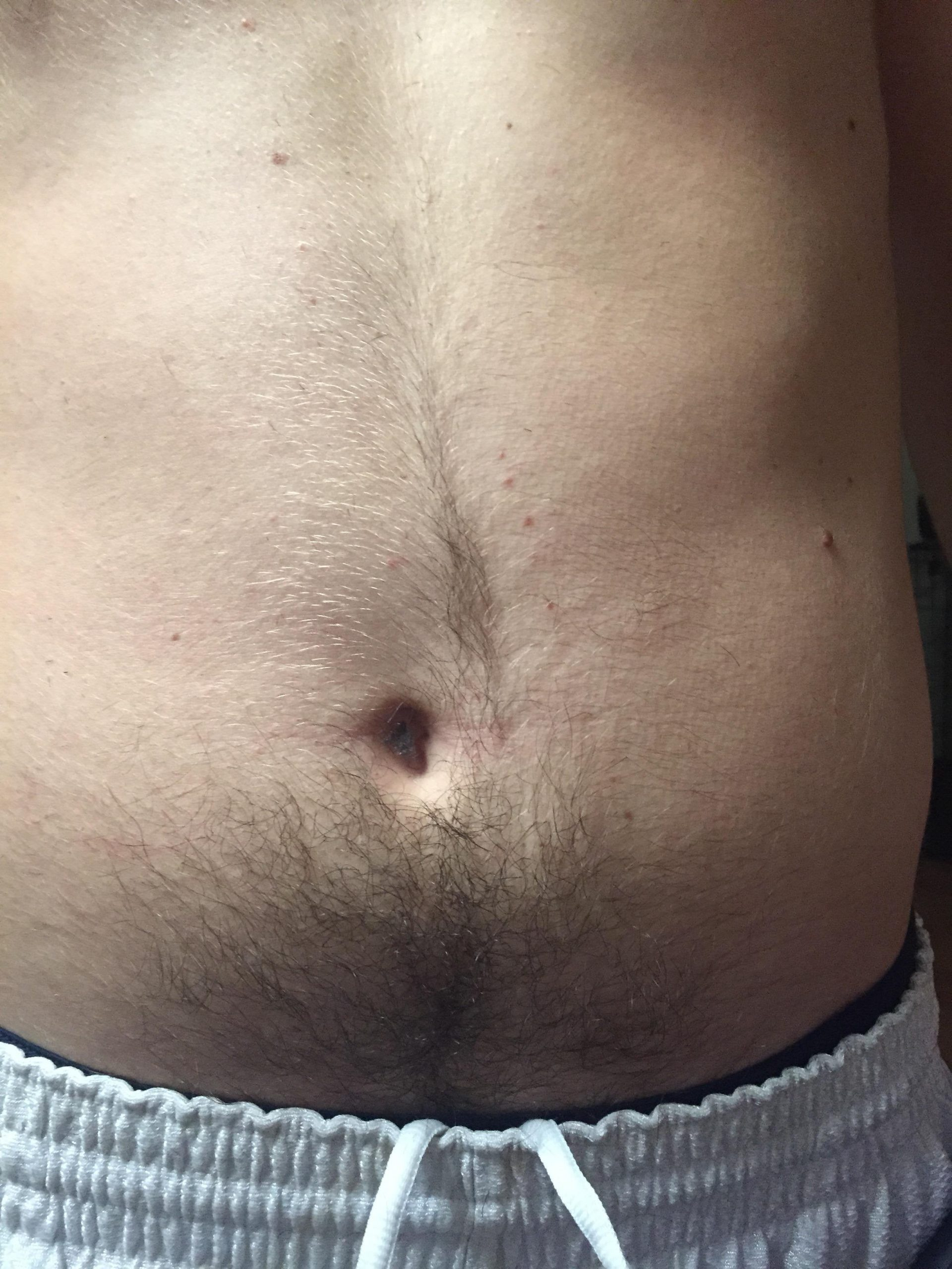 The Craziest Belly Buttons Ever