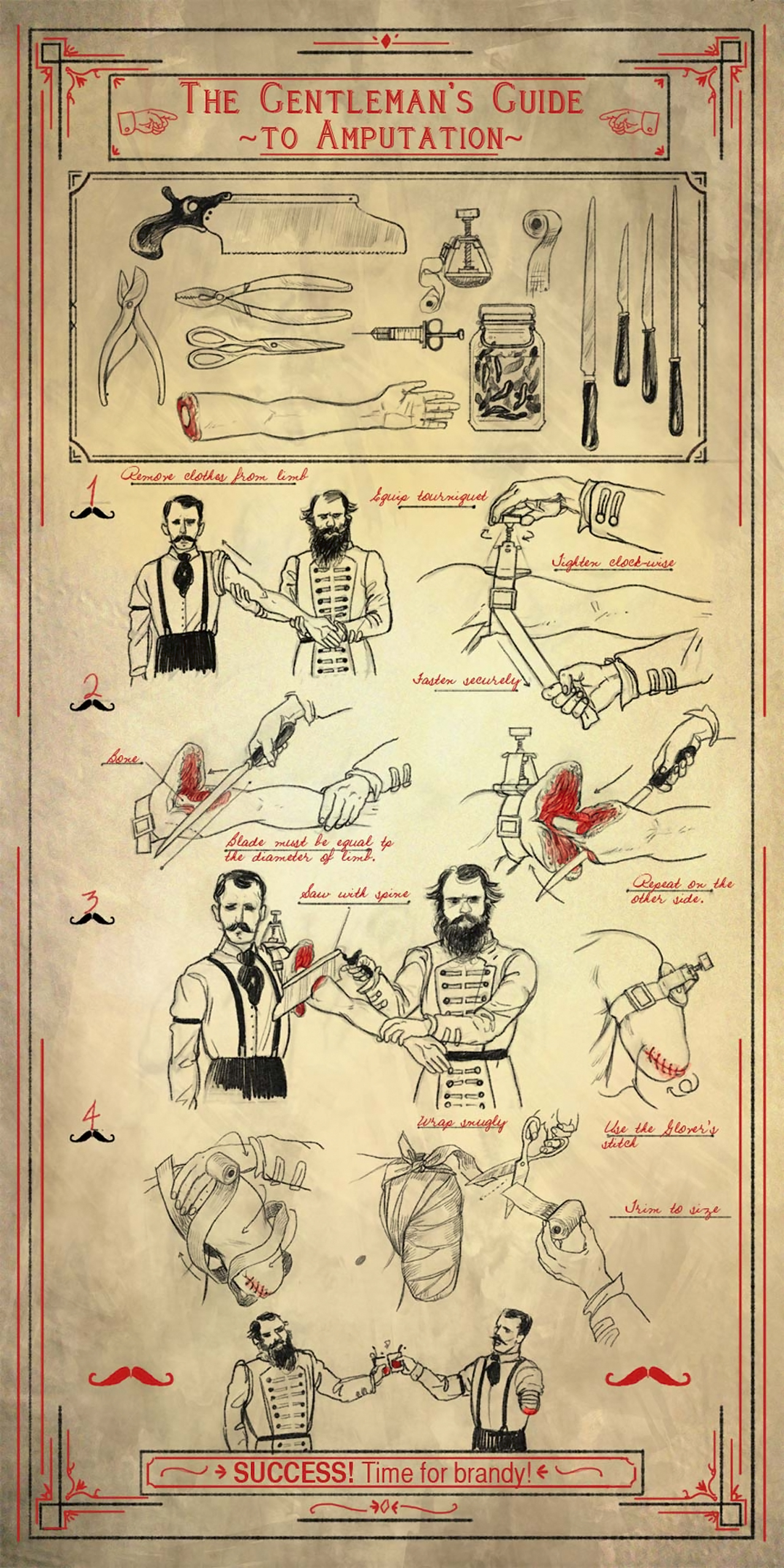 THE GENTLEMANS GUIDE TO AMPUTATION