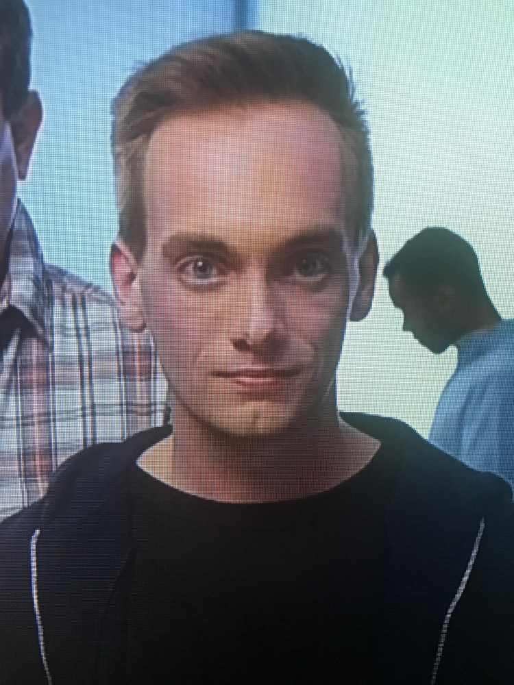 When Your Forehead Is A Five Head